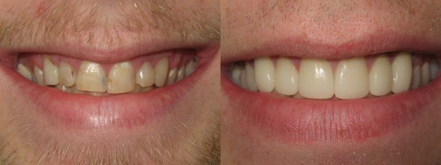 Dental Veneer Before and After